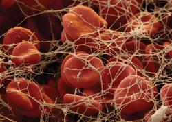 Disseminasiya olunmuş damar daxili laxtalanma