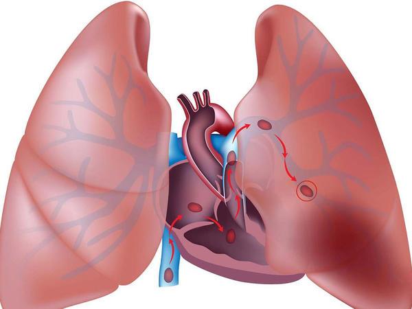Ağ ciyər arteriyasının tromboemboliyası