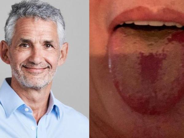 Dildə bu dəyişikliklər koronavirusa işarə edir