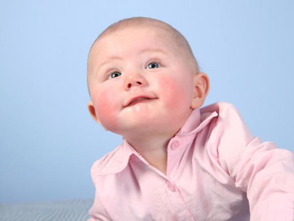 Uşaqlarda allergik diatezlər