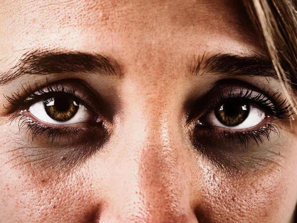 Gözətrafı dərinin bir sıra problemləri