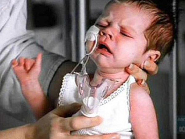Uşaqlarda nəfəsalma orqanlarının infeksion xəstəlikləri