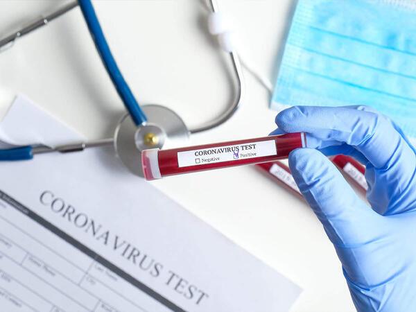 Qorxulan oldu: Koronavirusun daha bir növü yayılır