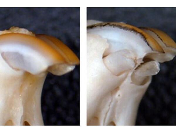 İtirilmiş azı dişləri bərpa edilə bilər
