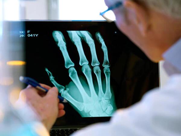 Bioloji parçalanan implantlar