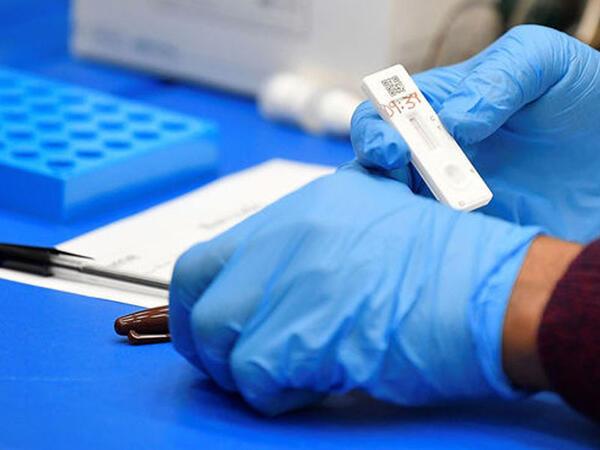 Britaniyada koronavirusun daha təhlükəli mutasiyası tapıldı