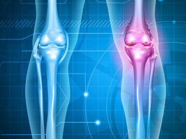 Osteoartrozun kliniki mənzərəsi