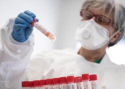 """Koronavirus laboratoriyada hazırlanıb? - <span class=""""color_red"""">ÜST rəhbəri danışdı</span>"""