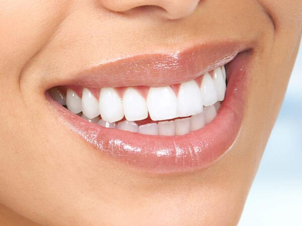 Dişləri sağlam saxlamaq üçün bir də bu vasitələri yoxlayın