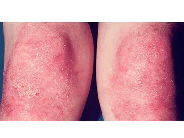 Dermatomiozitin kliniki mənzərəsi