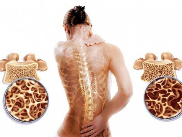 Osteoporozun risk faktorları
