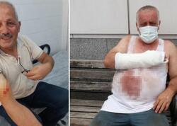 """Trabzonda qurban kəsimi: bələdiyyə başqanı da daxil olmaqla <span class=""""color_red"""">127 nəfər yaralandı</span>"""
