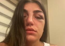 Gecə klubuna gedən modeli sevgilisi döydü, burnunu qırdı - VİDEO - FOTO