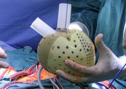 Dünyada ilk dəfə süni ürək transplantasiyası reallaşdırılıb
