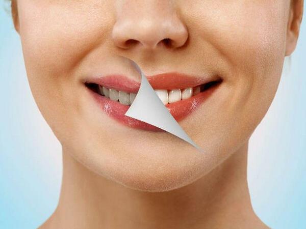 Dişlərin ağardılması
