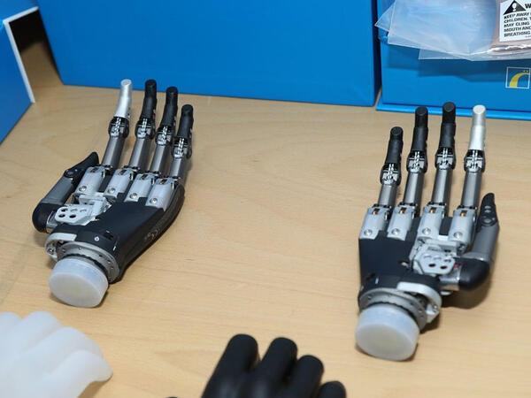 Yuxarı ətrafları amputasiya olunmuş qazilər üçün də son nəsil protezlər gətirildi - FOTO