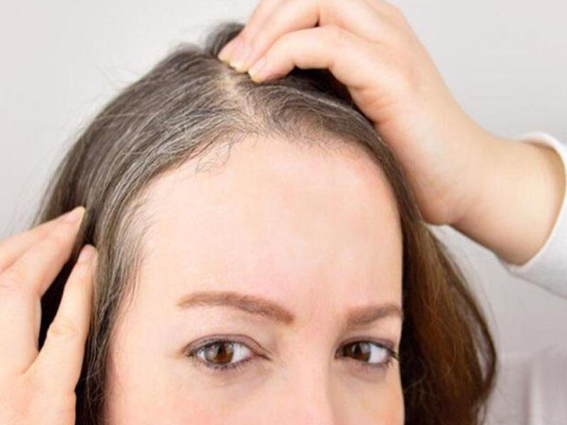 Ağ saçları necə yox etmək olar? - TƏBİİ ÜSULLAR