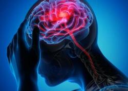 COVID-19 beynimizi necə məhv edir? - Nevroloq ŞOK NƏTİCƏLƏRİ açıqladı