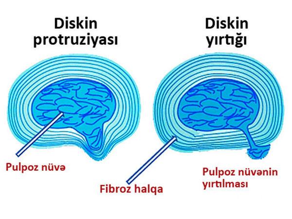 Fəqərəarası diskin protruziyası. Diaqnostika və müalicə