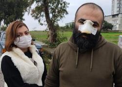 Pitbul azərbaycanlı iş adamının burnunu qopardı