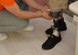 157 qazi yüksək texnologiyalı protezlərlə təmin edilib
